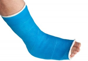 Ankle Fractures Guide